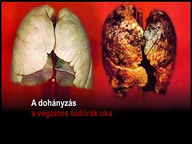 Dohányzó ember tüdeje